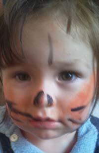 Snazaroo Face Paint Allergic Reaction